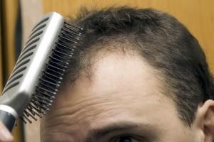 Emu Oil Shampoo for Thinning Hair