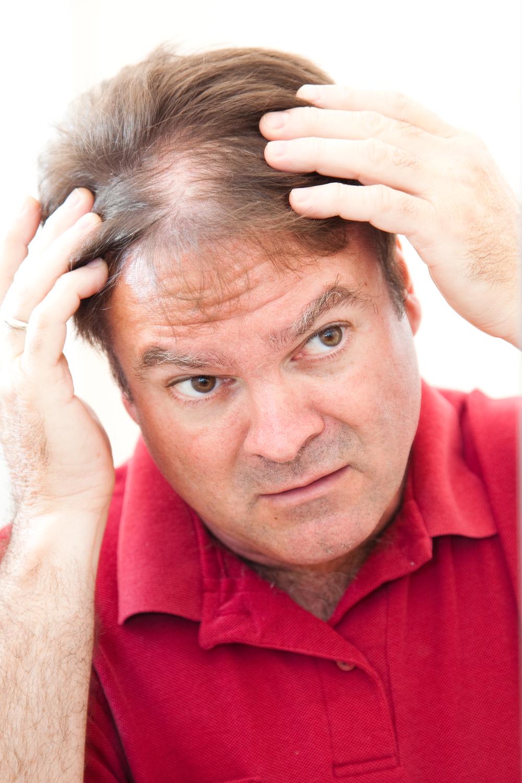 Sleeping Hair Follicles -Thinning Hair